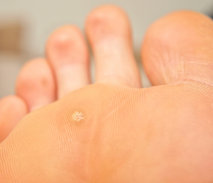 image of a corn on the sole of a persons foot