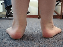 example of someone with flat feet, view of their feet and ankles from behind