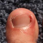 ingrown big toe nail