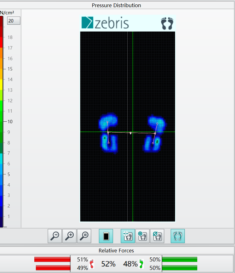 Example of one of the features of the zebris treadmill - pressure distribution