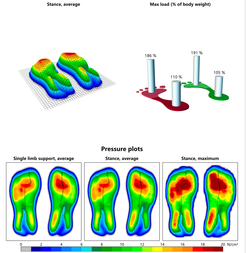 view of several of the things that can be measured with the zebris treadmill