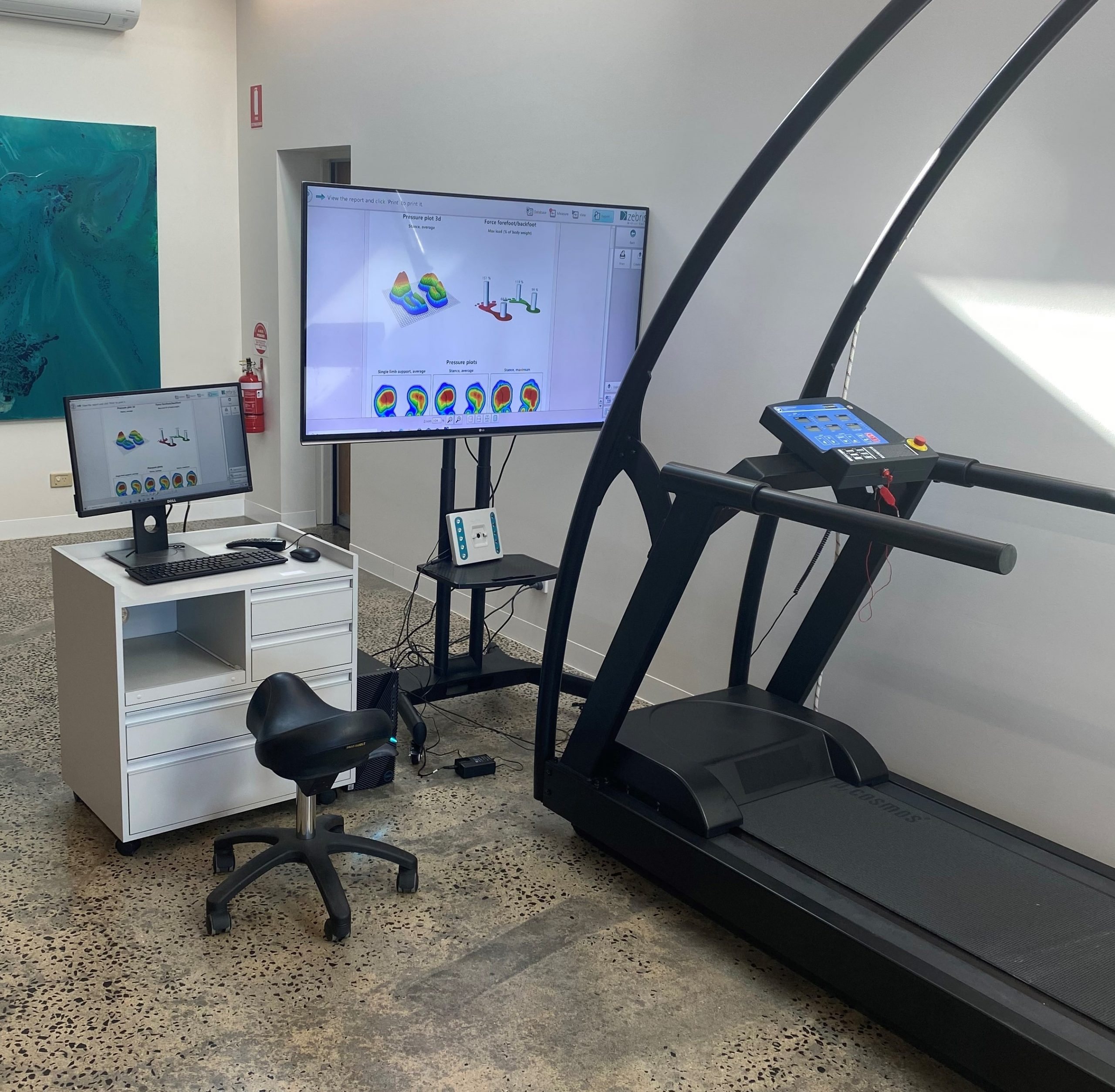 view of the zebris treadmill set up at the watsonia podiatry clinic