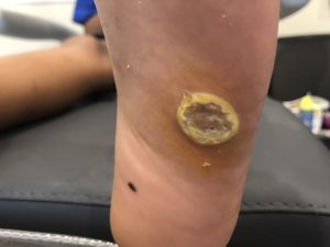 example of a large wart on the sole of the midfoot