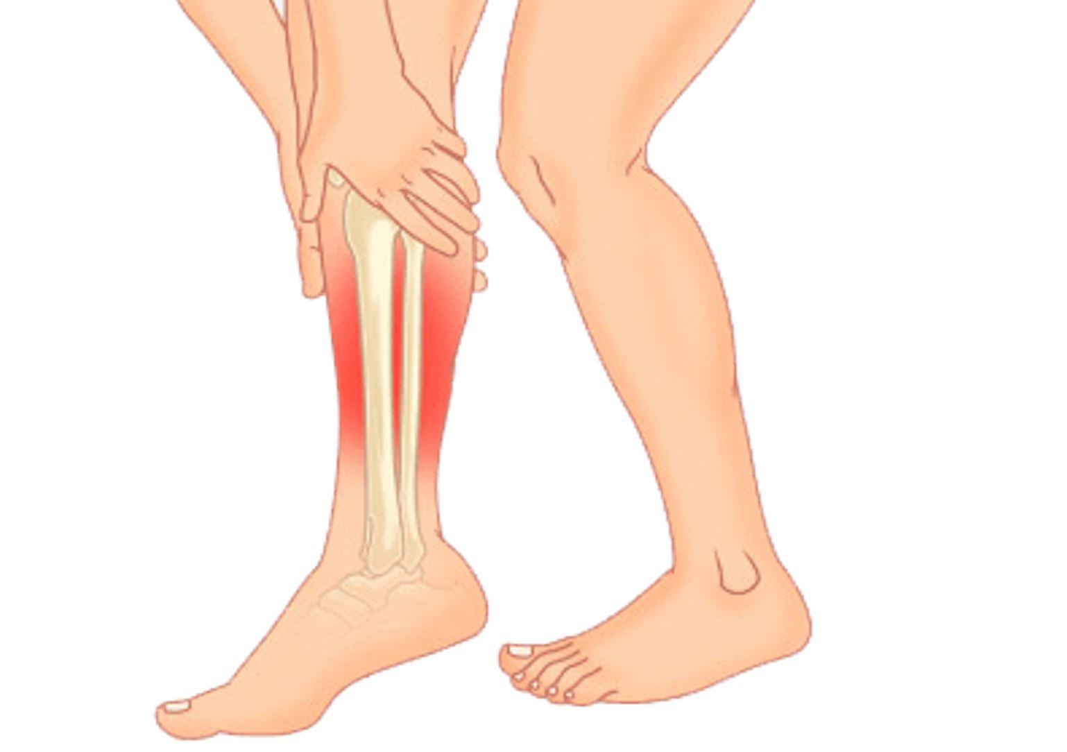 diagram showing where shin splints can cause pain