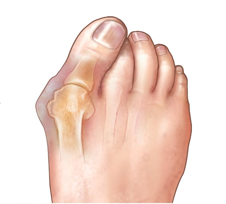 illustration example of foot with with bunion on big toe and bone of the big toe visible