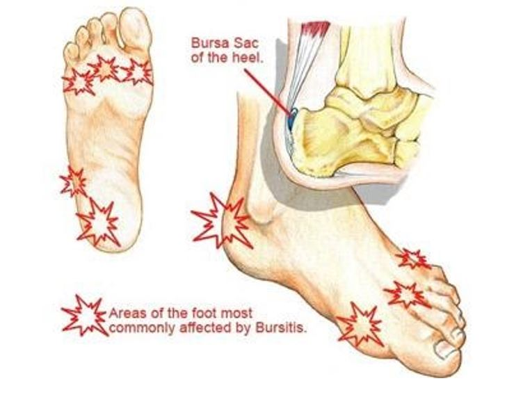 various diagrams of feet showing where feet are most commonly affected by bursitis