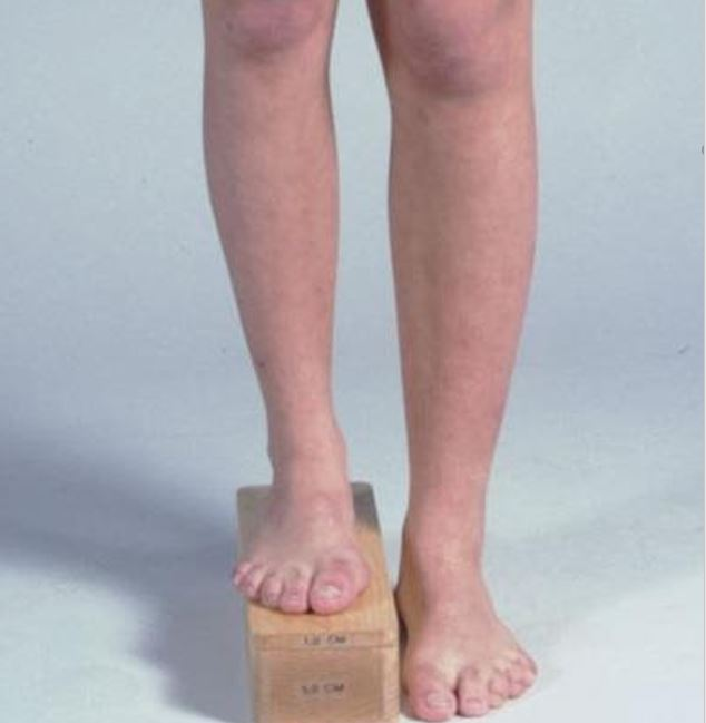 image of a persons legs have a limb length discrepancy