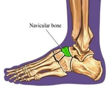 diagram of foot showing where the navicular stress fractures can occur