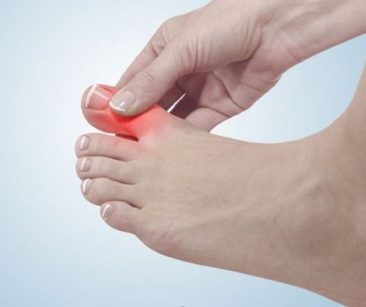 foot showing where pain occurs for hallux limitus condition