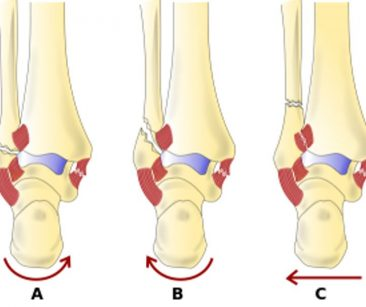 potts fracture diagram examples