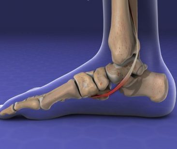 diagram of foot bones where tibalis posterior dysfunction can occur