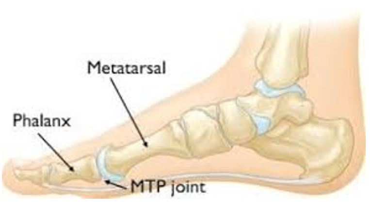 diagram of foot showing where turf toe affects